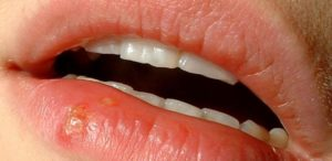 Cold Sore in Mouth - Stages, Treatments,